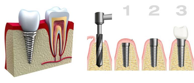 impianti dentali roma